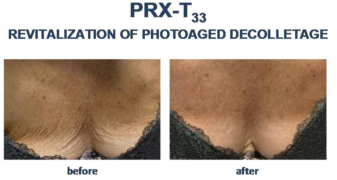prx t 33 efekty